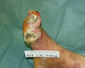 metatarso del piede