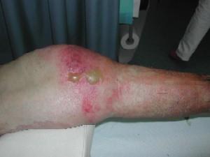 Infezioni necrotizzanti dei tessuti molli (I.N.T.M.)