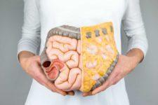 Il colon: sede del benessere e salute